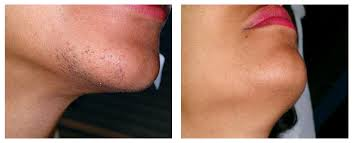 dcc-Laser-Hair-Removal-Dark-Skin
