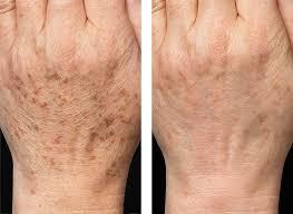 dcc-Laser-treatment-Brown-Spots