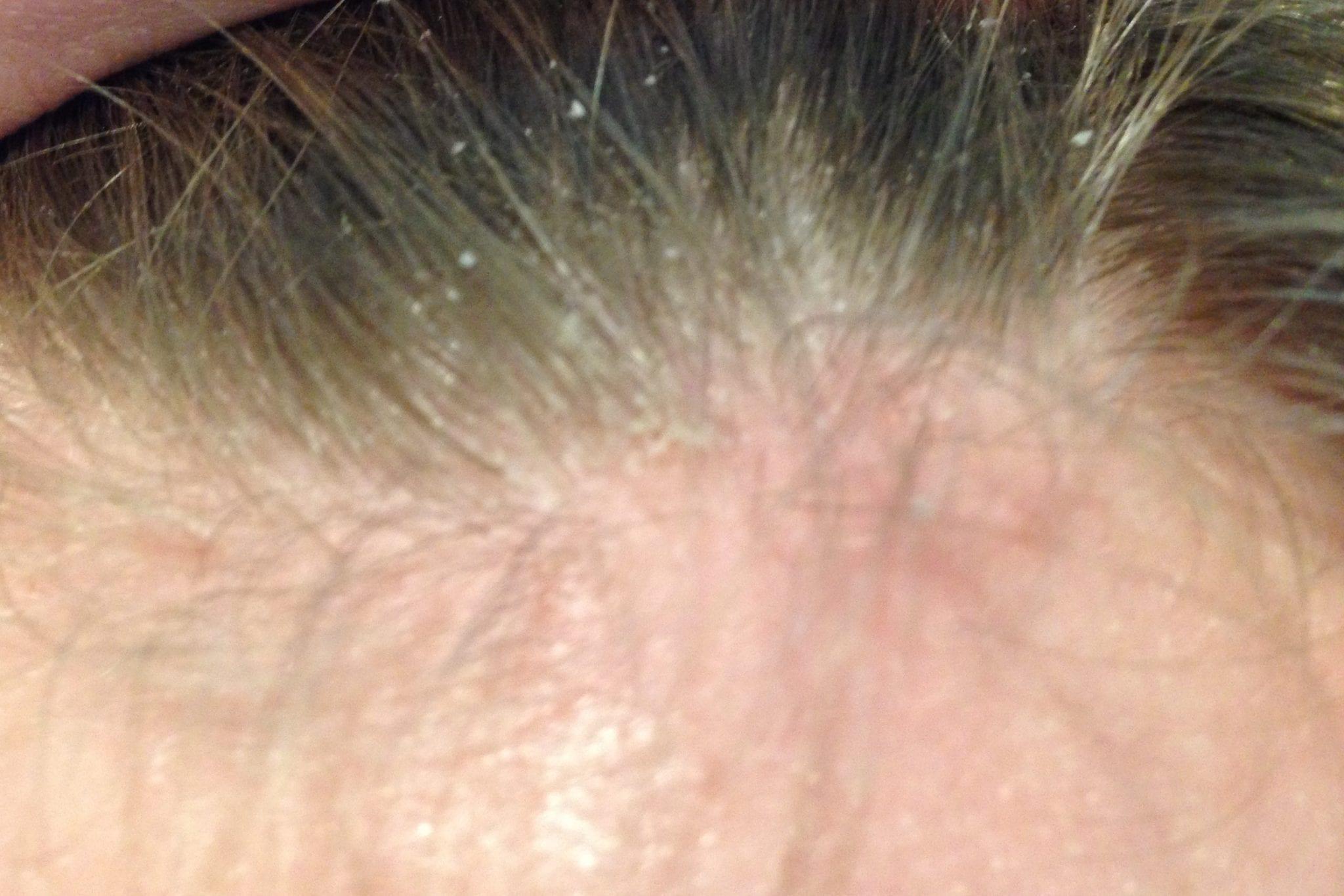 dcc-Seborrheic-dermatitis-scalp-e