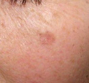 dcc-actinic-keratosis-face-300x280