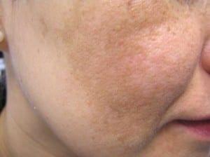 dcc-melasma-face-300x224