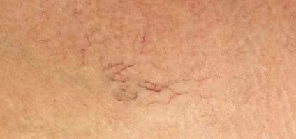 Molluscum contagiosum treatment dermatology care of charlotte dermatology care of charlotte for Molluscum contagiosum swimming pool