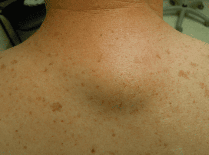 Lipoma Treatment | Dermatology Care of Charlotte