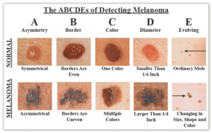 abcdes-of-melanoma