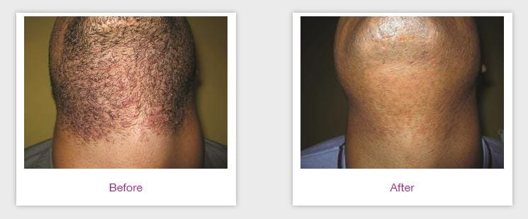 Laser Hair Removal Dark Skin Dermatology Care Of Charlotte