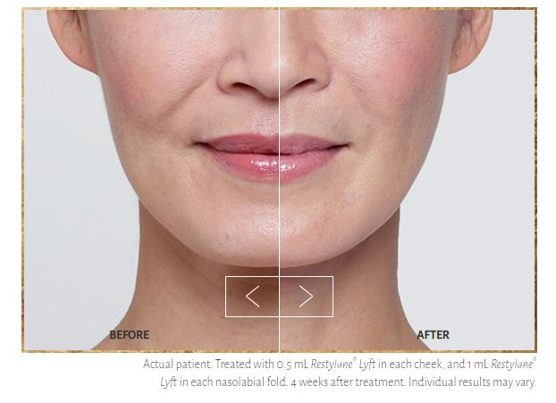 Juvederm Treatment | Dermatology Care of Charlotte